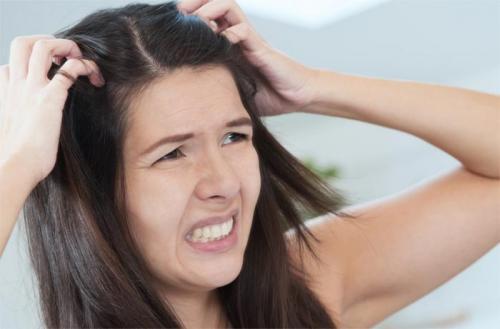 Маски для волос против перхоти в домашних условиях. Домашние рецепты масок против перхоти